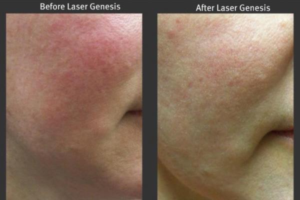 laser-genesis-1.png