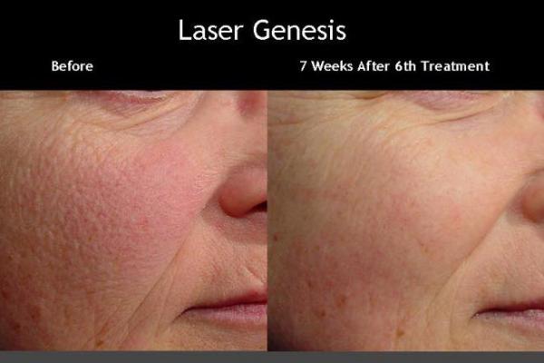laser-genesis-2.png