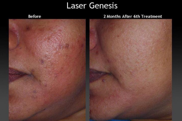 laser-genesis-3.png
